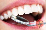 بیشتر از هشت دندان خود را پر نکنید!
